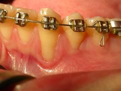 Zahnfleischaufbau vorher nachher bei parodontaler rezession